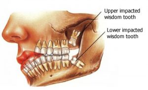 wisdom tooth surgery - FMS DENTAL HOSPITAL